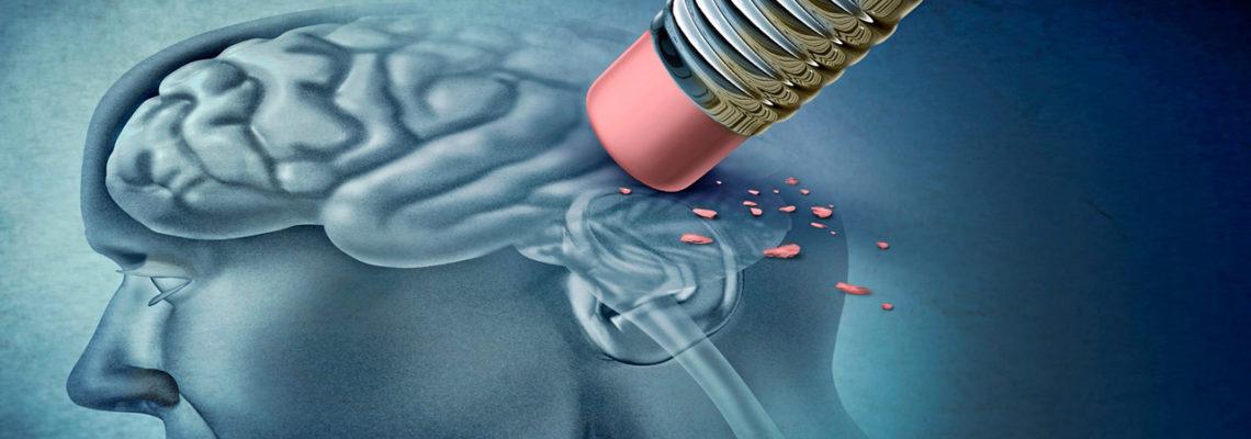 Medicamento experimental puede prevenir la enfermedad de Alzheimer